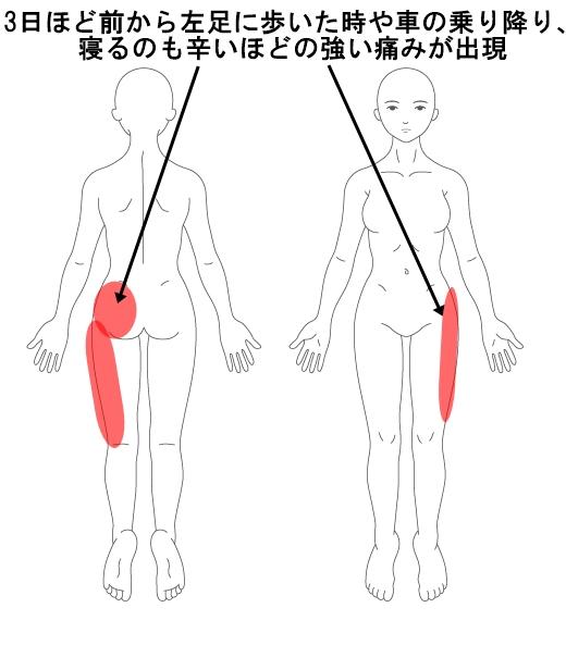 梨 状 筋 症候群