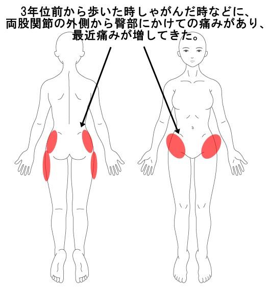 股関節 外側 痛い