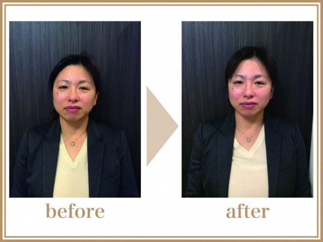 49歳女性(営業)の施術前、施術後の画像。施術の前後で肌が1トーン上がり、顔の輪郭が変化している。