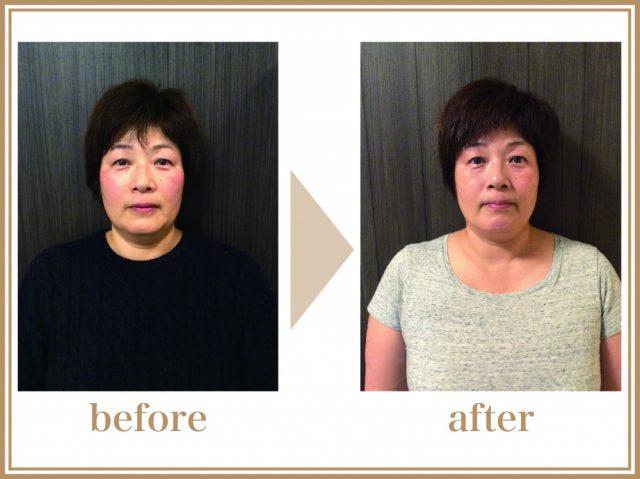 53歳女性(主婦)の施術前、施術後の画像。小顔効果もあり、シワも減っている。