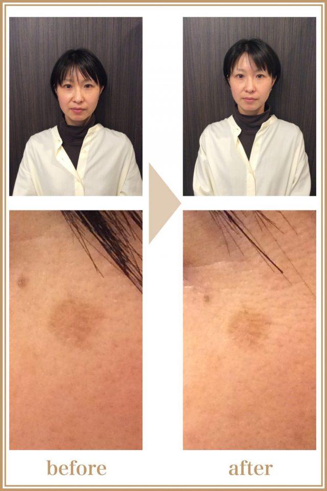 37歳女性(主婦)の施術前、施術後の画像。顔の血色が良くなり、フェイスラインもスッキリ、しみも薄くなっている。